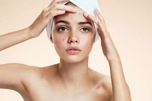 Acne and congestion-Escape Skin and Body - Beauty Salon Hobart